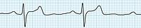 The Latest Evidence in Hypertension & Stroke